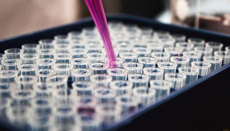 V kraji bolo potvrdených osem nových prípadov nákazy koronavírusom